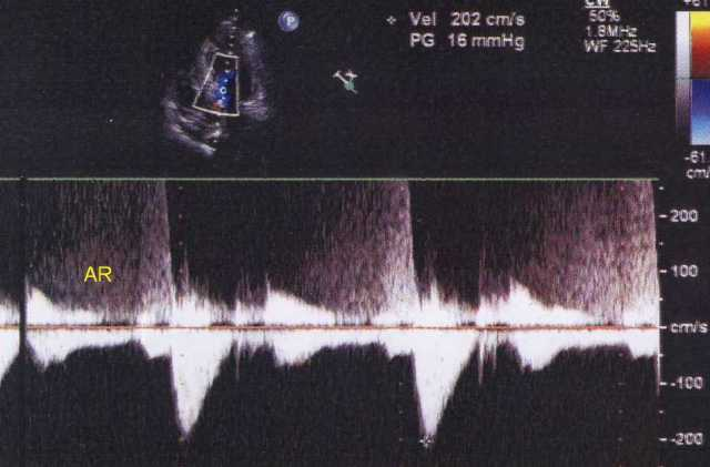 HCM with mild AR seen on continuous wave Doppler