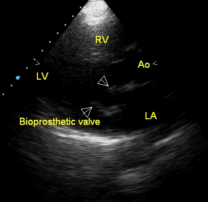 Echocardiogram of bioprosthetic mitral valve in parasternal long axis view
