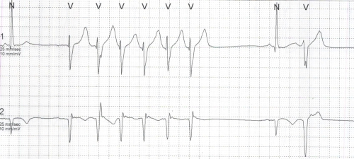 Polymorphic VPC and NSVT on Holter