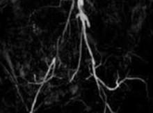 MR angio in aortic bifurcation disease