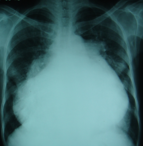Gross cardiomegaly on Chest X-ray PA view