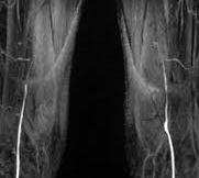 MR angio of femoral and popliteal arteries