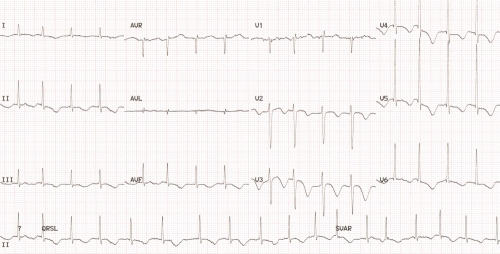 Post operative cardiac arrhythmias