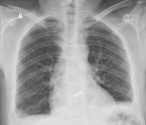 Prosthetic TTK Chitra aortic valve on chest X-ray
