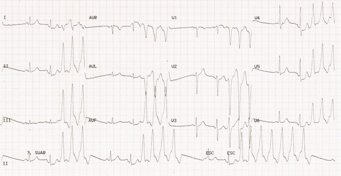 RVOT ventricular tachycardia