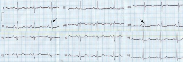 ECG showing crochetage sign in atrial septal defect