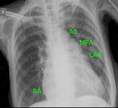 Chest X-ray in Mitral Stenosis with third mogul sign [prominent left atrial appendage (LAA)]