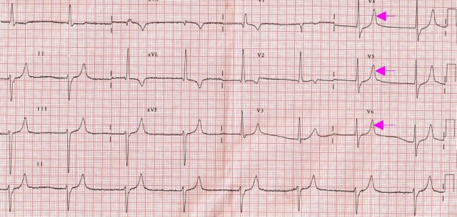 RBBB, LAHB, Junctional rhythm