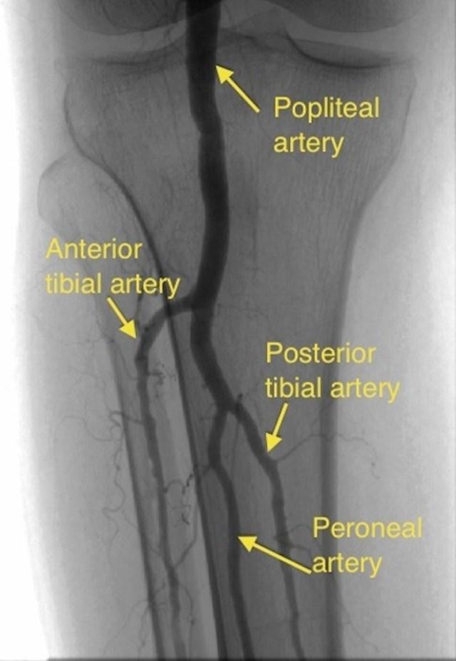 Popliteal angiogram
