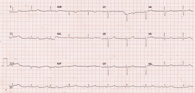 ST prolongation in hypocalcemia