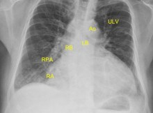 Cardiomegaly on CXR