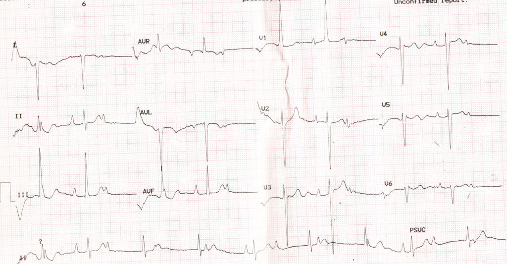 Complete heart block and right ventricular hypertrophy