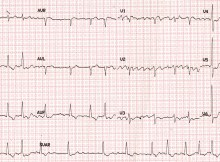 Coarse atrial fibrillation on ECG