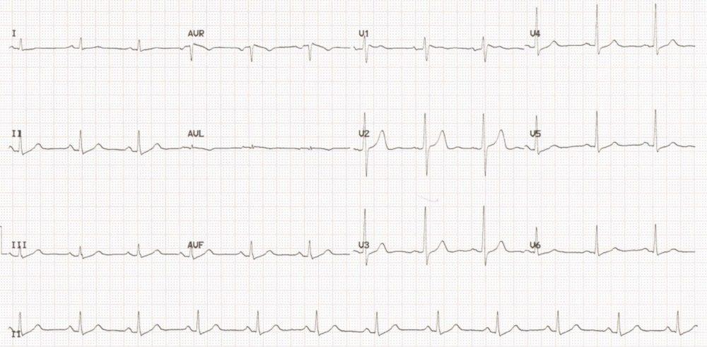 Twelve Lead ECG