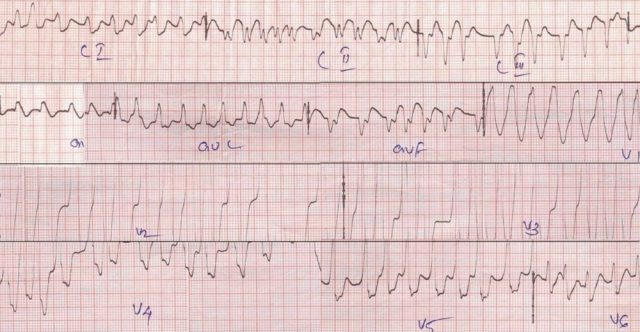 Atrial fibrillation with WPW syndrome causing a wide QRS tachycardia