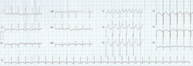 Atypical atrial flutter with 2:1 conduction
