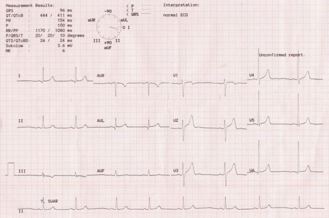 Computerized ECG recording with automatic display of calculated P, QRS and T waves axes