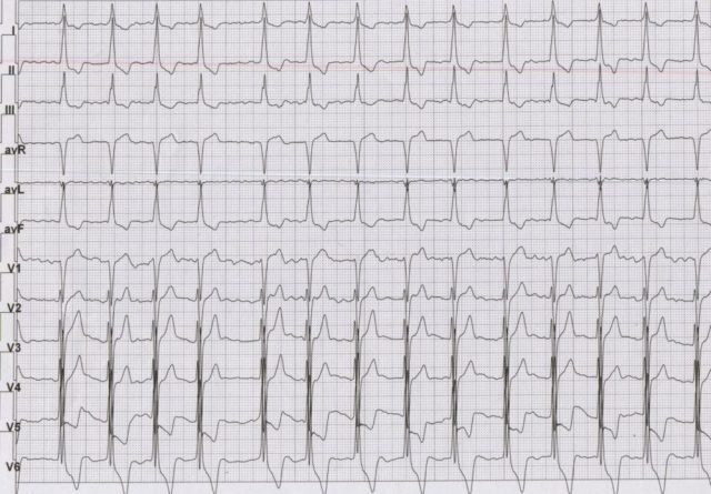 ECG in hypertrophic cardiomyopathy with atrial fibrillation