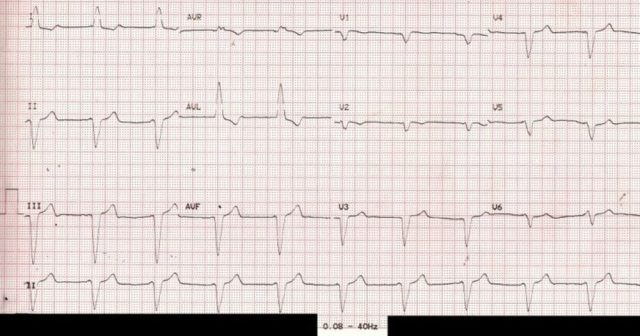 ECG with filter range 0.08 – 40 Hz – pacemaker spikes not visible