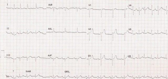 Multifocal atrial tachycardia and blocked atrial ectopic beat