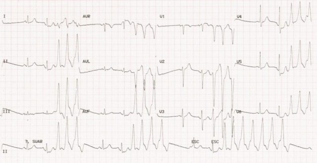 Nonsustained ventricular tachycardia (NSVT)