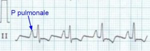P pulmonale in right atrial enlargement