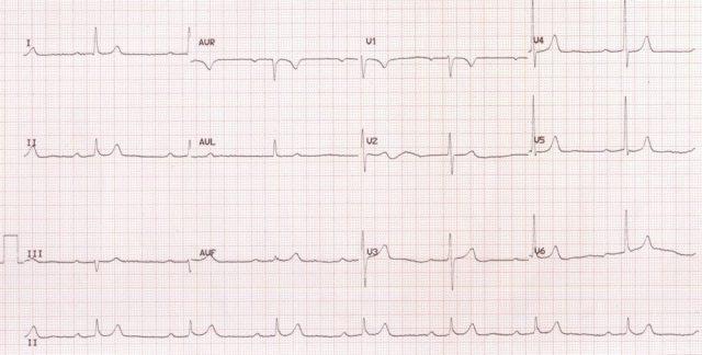 Sinus bradycardia with first degree AV block