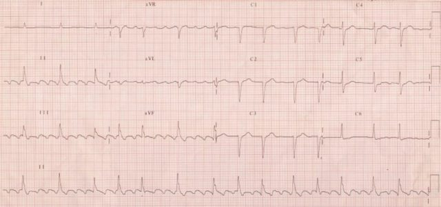 Typical atrial flutter with 4:1 conduction