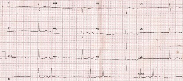 Arrhythmia Quiz