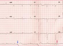 Pacemaker sensing failure