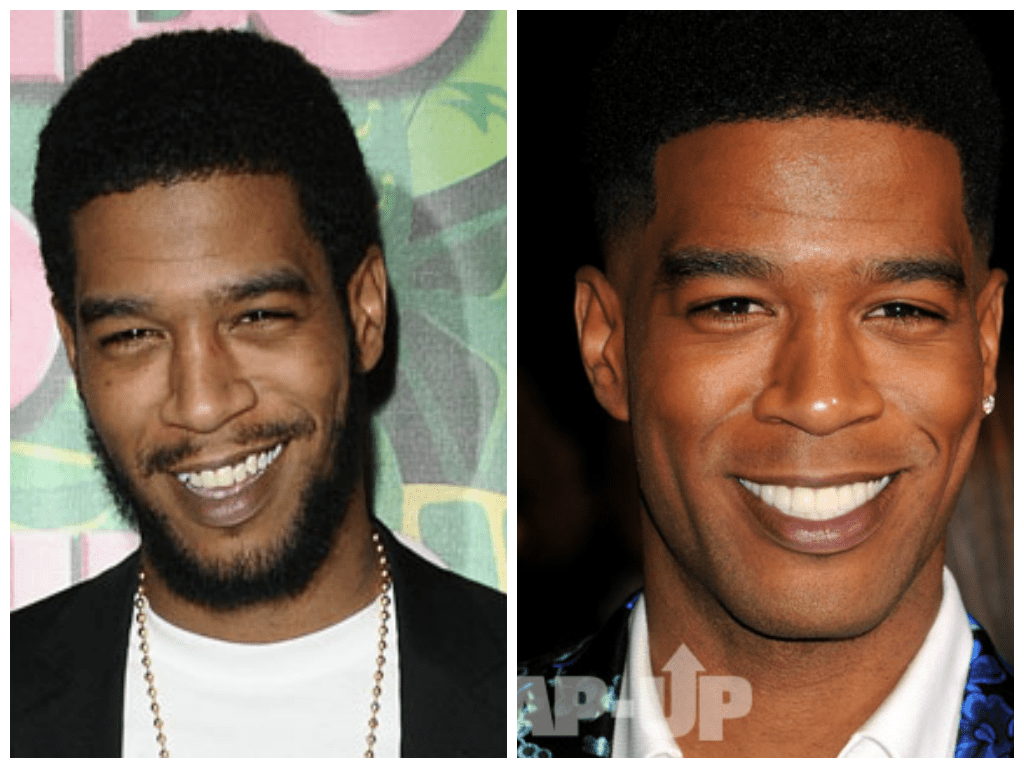 Changing Faces Kid Cudi Debuts New Teeth New Look At Need For