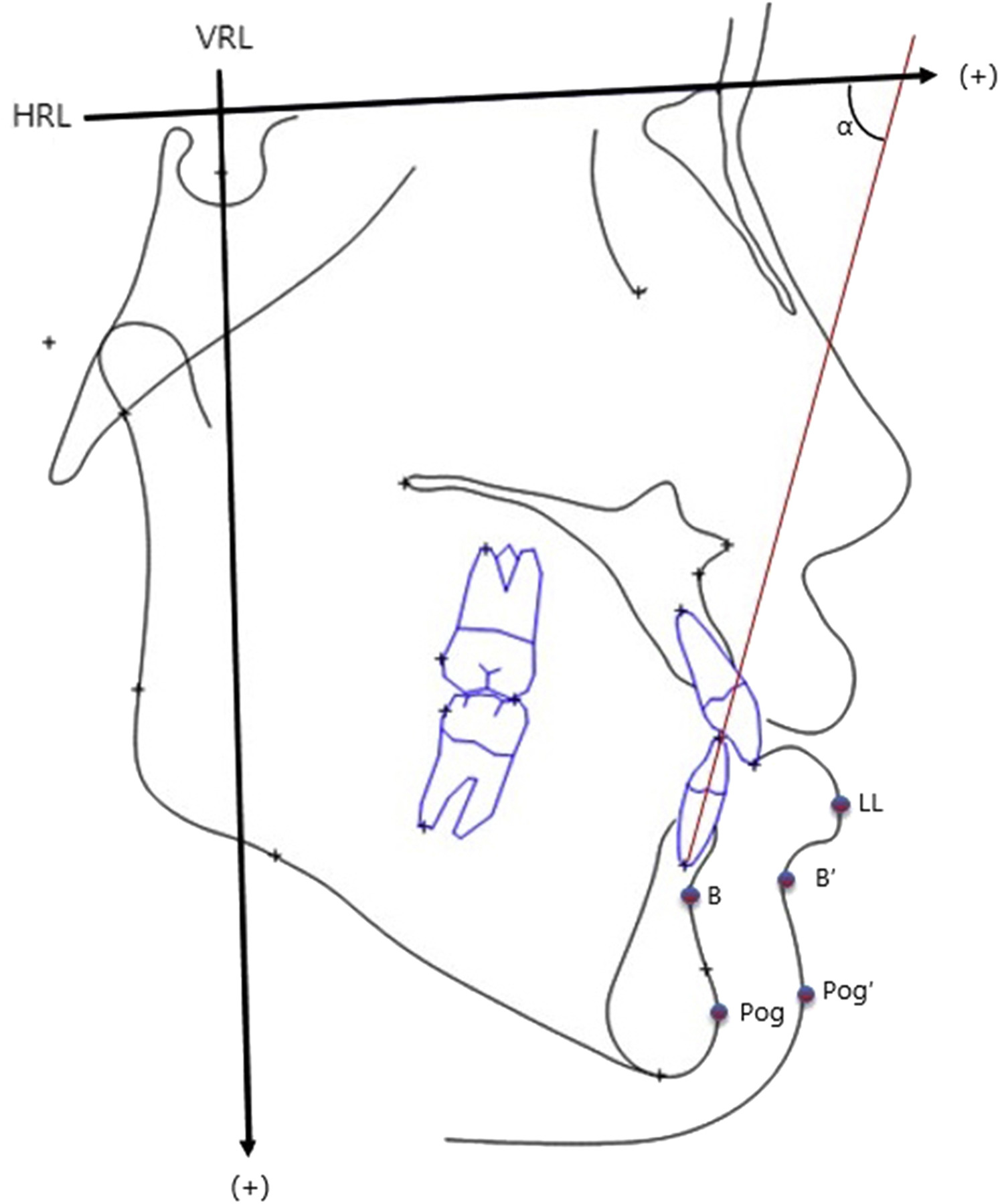 Stability After Bilateral Sagittal Split Osteotomy With