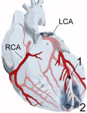 Heart showing MI