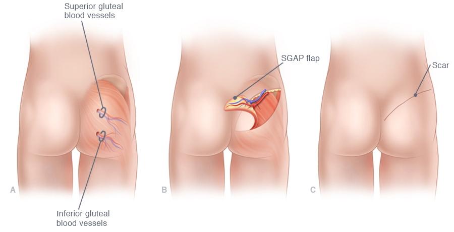Afbeeldingsresultaat voor borstreconstructie met eigen weefsel