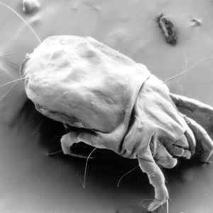 Cleanse Your Mattress dust mites female