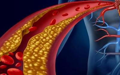 Has the Cholesterol Test Outlived its Usefulness?