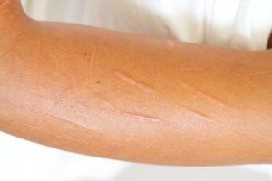 Self-harm 3: getting it right…