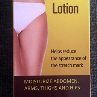 bodyxpert stretchmark lotion