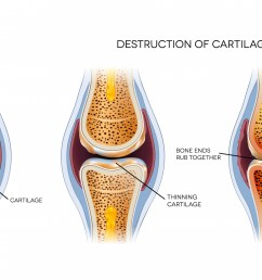 new ways to grow cartilage osteoarthritis research  [ 2500 x 1336 Pixel ]