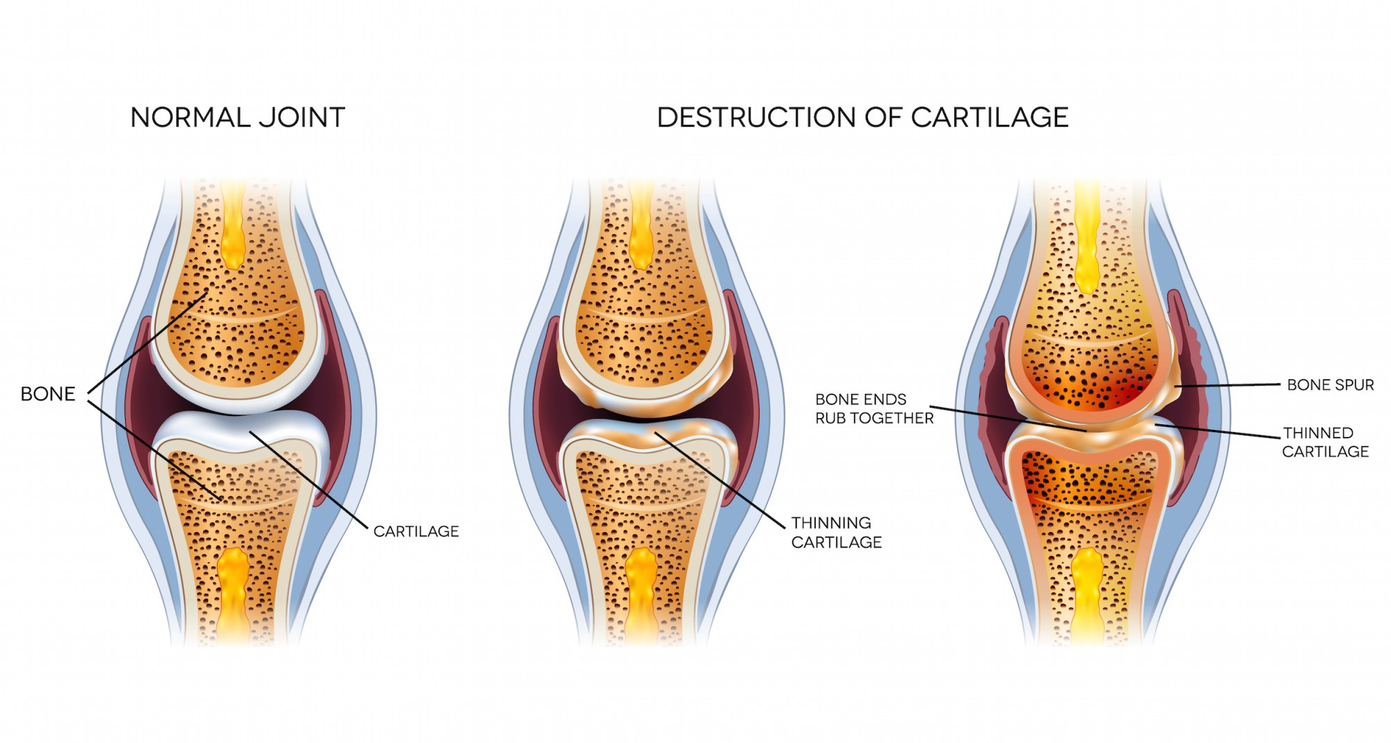 hight resolution of  new ways to grow cartilage osteoarthritis research
