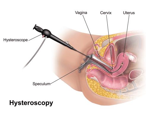 Cervical Cancer Biopsy