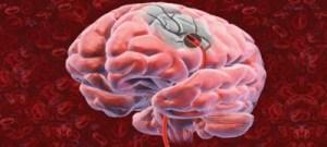 Confirmada eficácia de droga que dissolve coágulos para tratar AVC