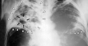 Chapas de raio-x podem prejudicar meio ambiente e saúde humana