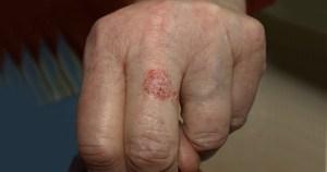 Campanha do HC busca diagnóstico precoce de câncer de pele