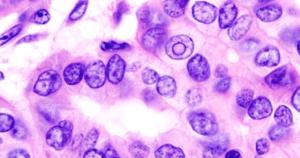 Identificados genes para barrar a progressão do câncer de tireoide