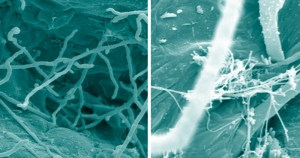 Reprodução sexuada é exceção para fungo causador do pé de atleta