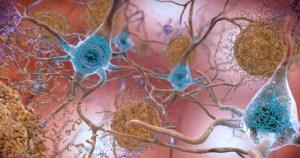 Estudo descobre vulnerabilidade seletiva de neurônios no desenvolvimento de Alzheimer