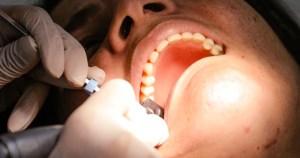 Terapias com novas tecnologias controlam a periodontite