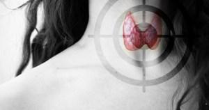Doença da tireoide, síndrome de Hashimoto pode ser controlada