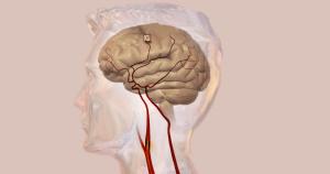 Workshop traz capacitação em acidente vascular cerebral
